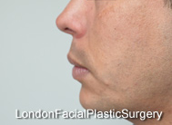 Chin Implants & Reduction After 4