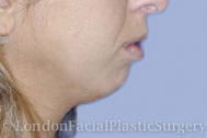 Chin Implants & Reduction Before 1