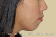 Chin Implants & Reduction Before 2
