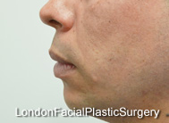 Chin Implants & Reduction Before 4