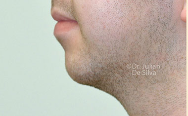 Chin Implants & Reduction Before 9