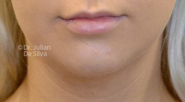 Chin Implants & Reduction Before 24