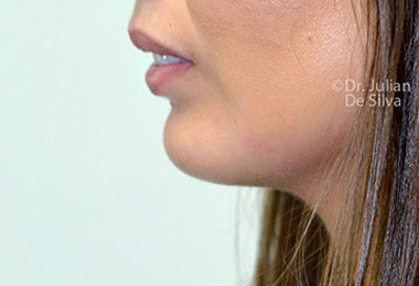 Chin Implants & Reduction After 2