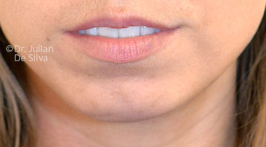 Chin Implants & Reduction Before 26