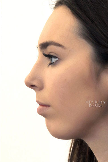 Chin Implants & Reduction After 5
