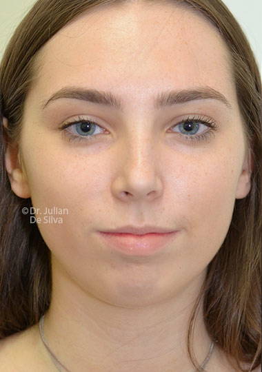Chin Implants & Reduction Before 28
