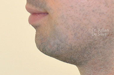 Chin Implants & Reduction Before 6