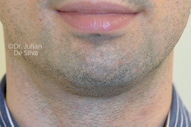 Chin Implants & Reduction Before 29