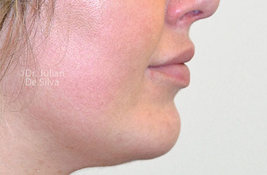 Chin Implants & Reduction After 28