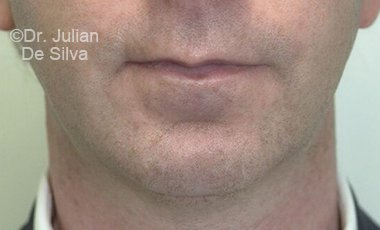 Chin Implants & Reduction After 16
