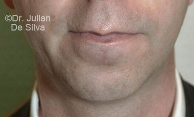 Chin Implants & Reduction Before 16