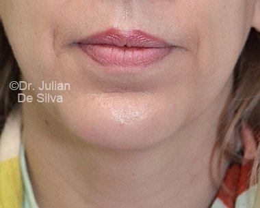 Chin Implants & Reduction After 17