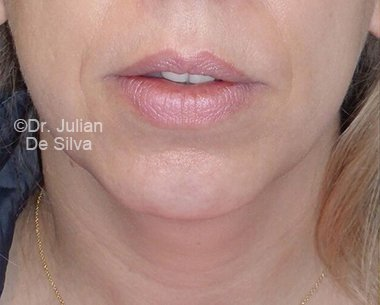 Chin Implants & Reduction Before 17