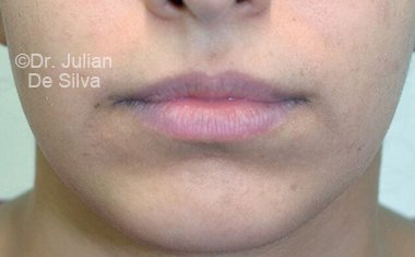 Chin Implants & Reduction After 18