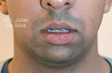 Chin Implants & Reduction Before 21