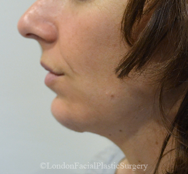 Chin Implants & Reduction After 10