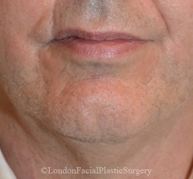 Chin Implants & Reduction Before 11