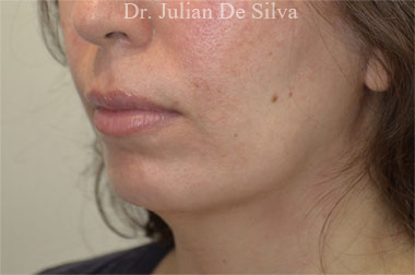 Chin Implants & Reduction Before 12