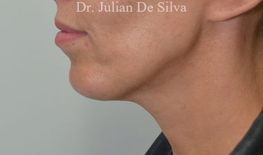 Chin Implants & Reduction After 13