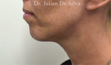 Chin Implants & Reduction Before 13