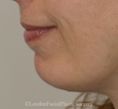 Chin Implants & Reduction After 7