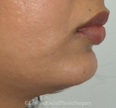 Chin Implants & Reduction After 9