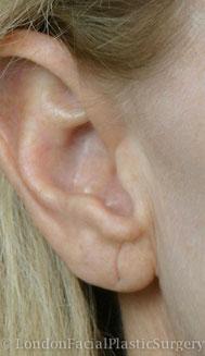 Ear Repair & Re-Shaping Before 1