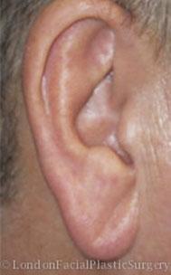 Ear Repair & Re-Shaping Before 2