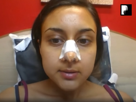 5 Ethnic Rhinoplasty Video Diary Day 4 After surgery
