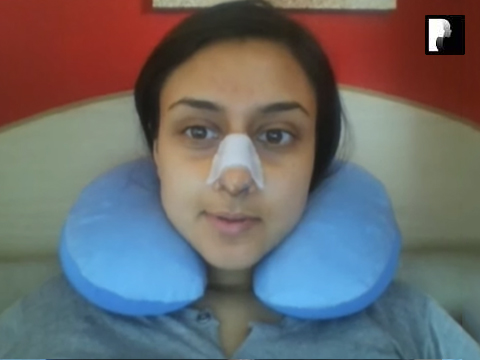 8 Ethnic Rhinoplasty Video Diary Day 7 After surgery
