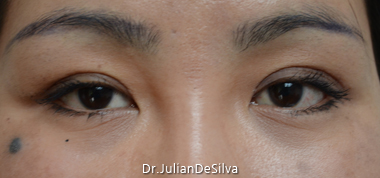 Female Blepharoplasty After 15