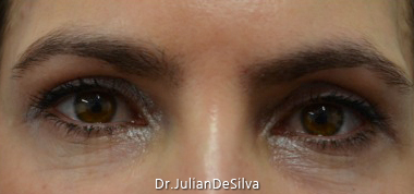 Female Blepharoplasty After 14