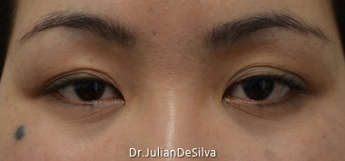 Female Blepharoplasty Before 15