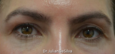 Revision Blepharoplasty Before 2