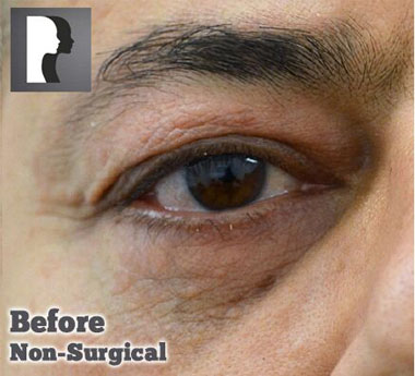 Non-Surgical Treatments Before 5