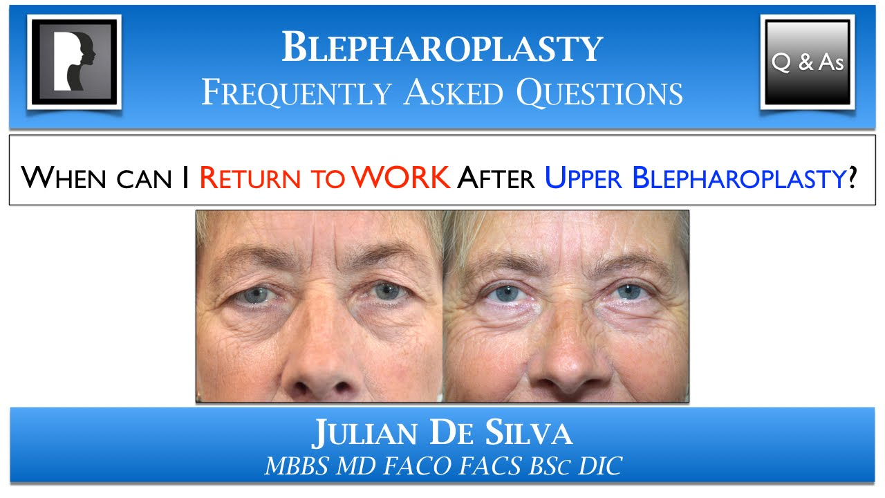 Watch Video: Upper Blepharoplasty Recovery: Returning to Work after Upper Eyelid Lift Surgery