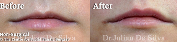 Lip Filler Enhancement