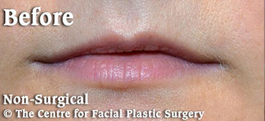 Non-Surgical Treatments Before 4