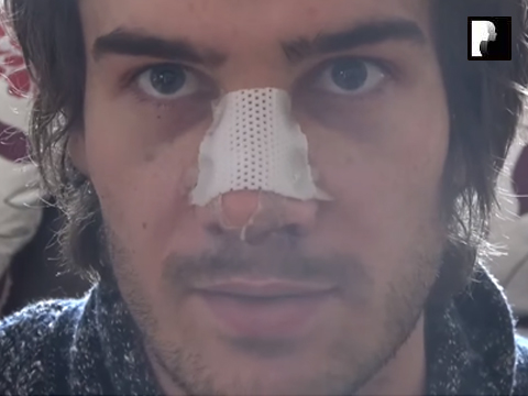 Male Rhinoplasty Nose Job Diary Day 2 Part 2 After Surgery