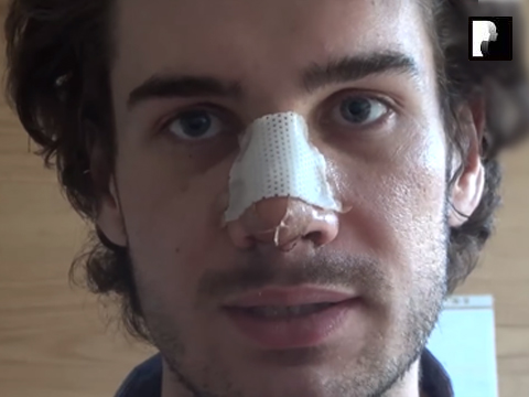 Male Rhinoplasty Nose Job Diary Day 3 After Surgery