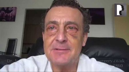Male Blepharoplasty, Eyelid Lift Diary -Day 8 after surgery
