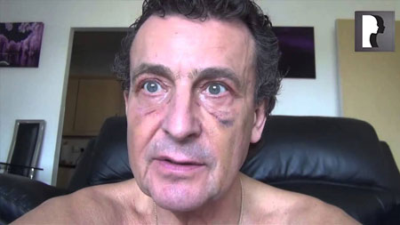 Male Blepharoplasty, Eyelid Lift Diary -Day 11 after surgery