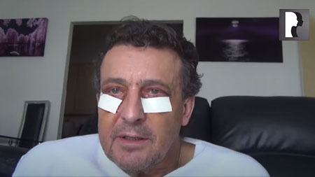 Male Blepharoplasty, Eyelid Lift Diary -Day 5 after surgery