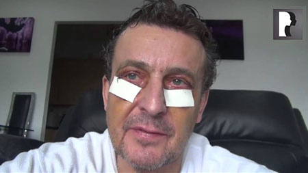 Male Blepharoplasty, Eyelid Lift Diary -Day 6 after surgery