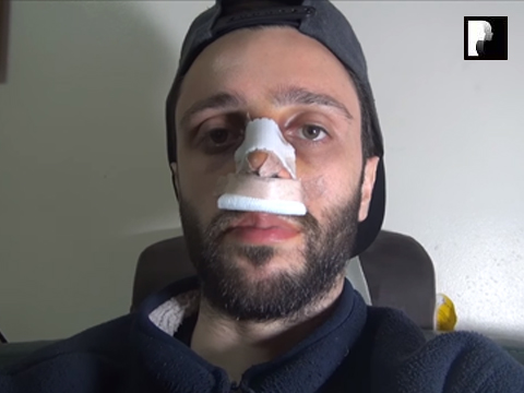 Middle Eastern Male Rhinoplasty Video Diary -Day 1 After surgery