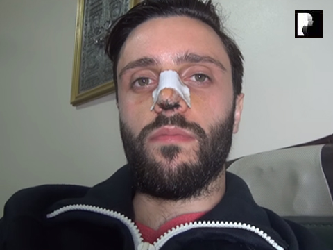 Middle Eastern Male Rhinoplasty Video Diary -Day 5 After surgery