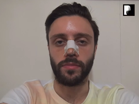 Middle Eastern Male Rhinoplasty Video Diary -Day 6 After surgery