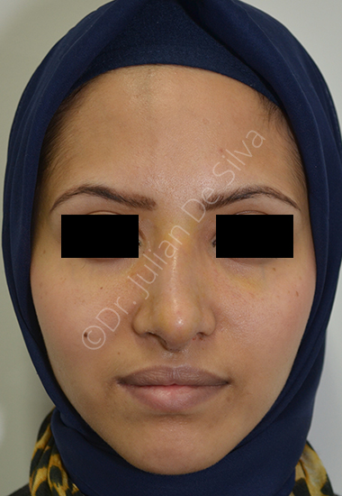 Nose Re-Shaping After 10