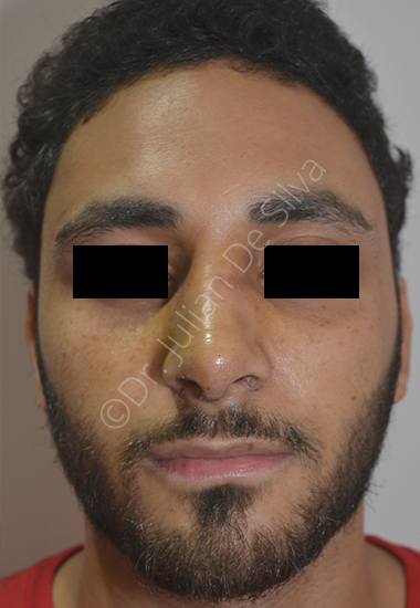 Nose Re-Shaping After 12