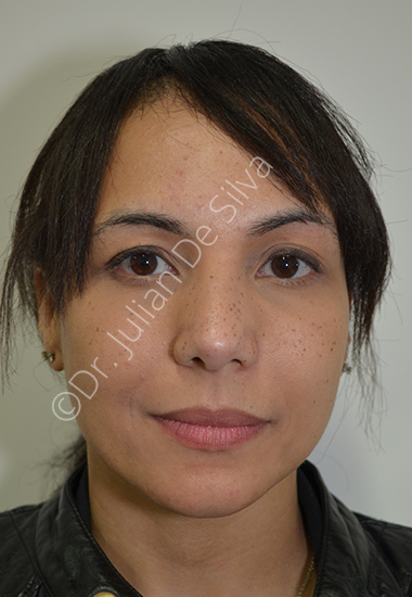 Nose Re-Shaping After 13